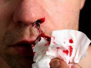 Каковы причины кровотечений?