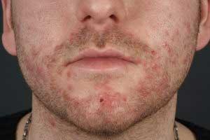 Стафилококковая инфекция