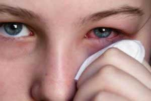 Каковы причины демодекоза?