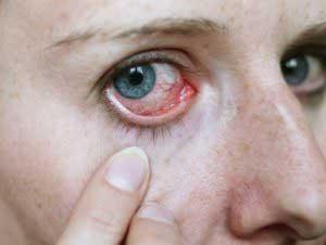 Как снять воспаление глаз?
