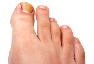 Нарыв на большом пальце ноги