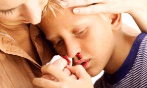 Как остановить кровь из носа дома самостоятельно?