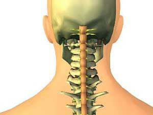 Как проявляется остеохондроз?