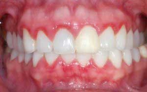 Домашние рецепты для лечения зубов