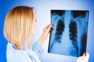 Туберкулез лечение народными средствами в домашних условиях 89