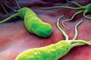 Хилакобактерия