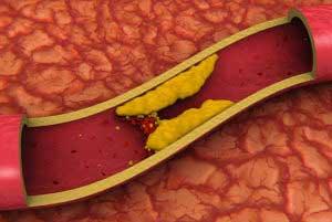 Профилактика повышения холестерина