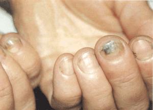 Как выглядит грибок ногтей?
