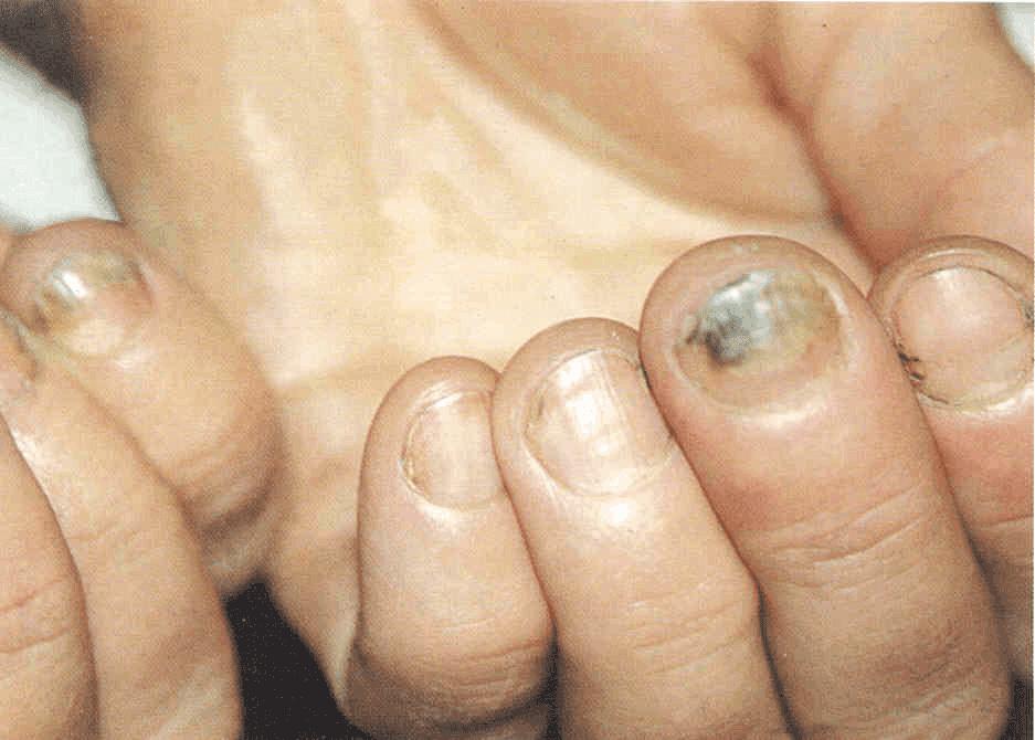 Эффективная Мазь От Грибка На Ногтях