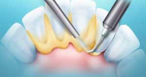 Зубные камни