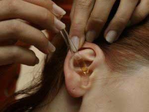 Как чистить пробки в ушах?