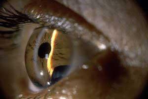 Полезные рекомендации при глаукоме