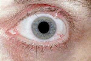 Глазной ячмень