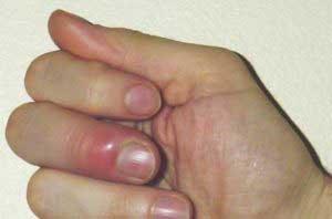 Нарыв на пальце