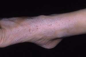 Нейродермит на ногах и руках